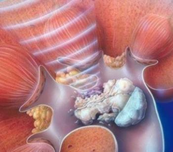 Equipamento de Litotripsia extracorpórea modelo Gemini Dornier