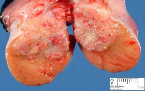 Câncer de Testículo 3